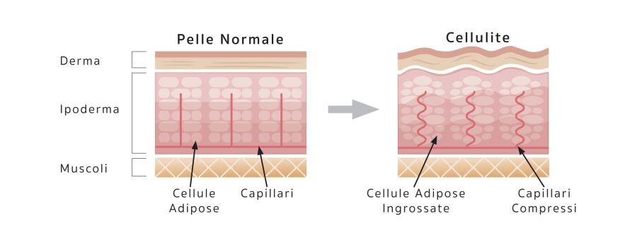 Schema cellulite