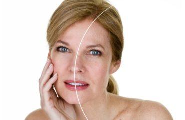 Invecchiamento pelle