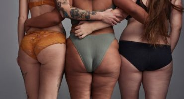 Tipologie cellulite donne